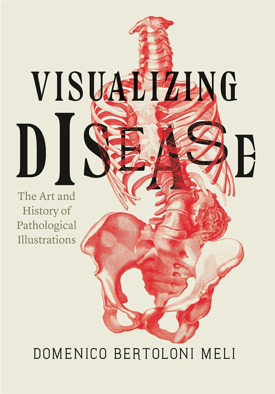 Visualizing Disease Is An Illuminating History Of How We Started To