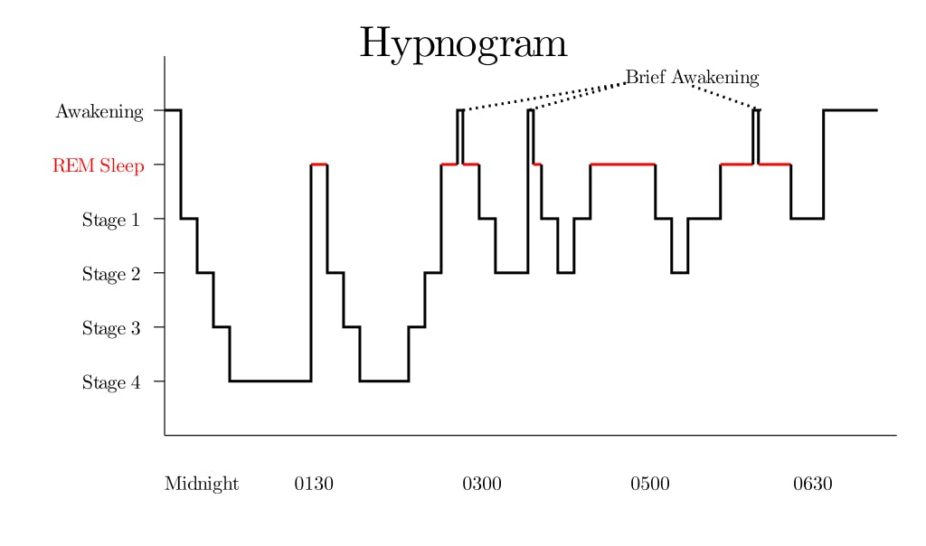 A diagram recording someone's transition between the different sleep stages between midnight and 6 A.M.